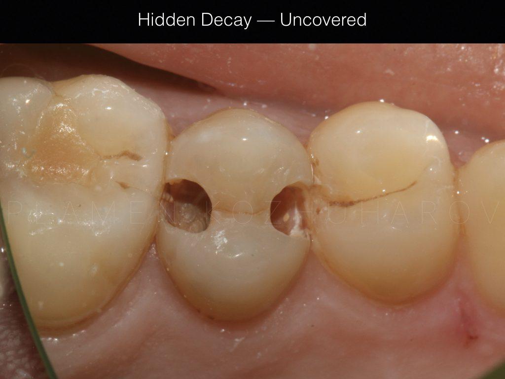 Hidden Decay - Exposed